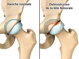 Chirurgie conservatrice de la hanche - Bordeaux